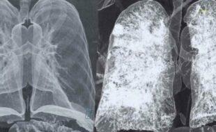 I polmoni dei pazienti post Covid-19 restano compromessi da grosse cicatrici, peggiori dei fumatori